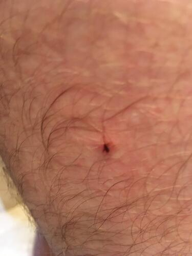 nymph-tick-embedded-in-thigh